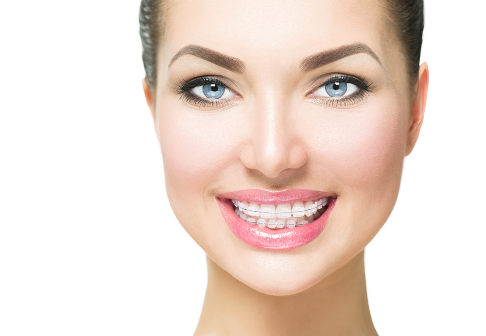 The Benefits of Clear Braces